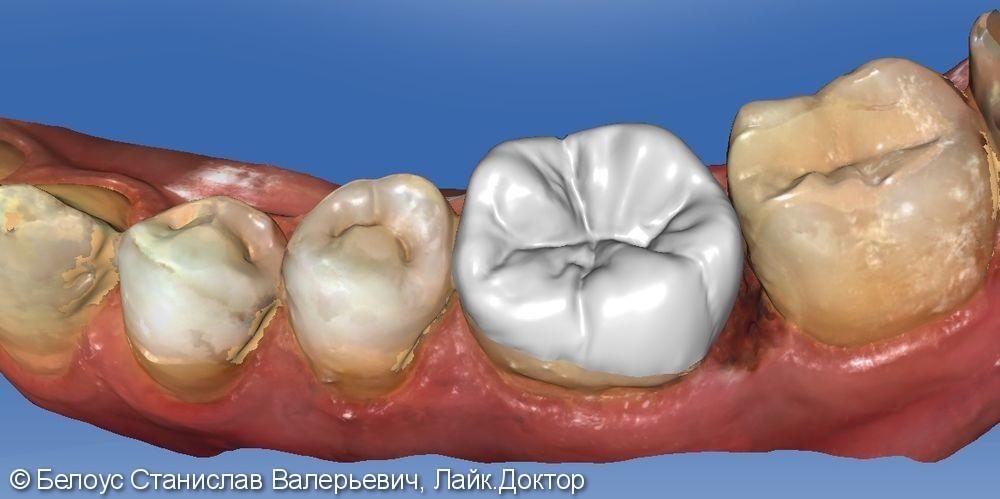 Лечение периодонтита и установка коронки по технологии CEREC из немецкой керамики, до и после - фото №1