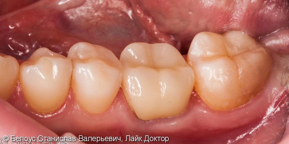Реставрация полностью разрушенного зуба CAD/CAM коронкой, дои после - фото №5