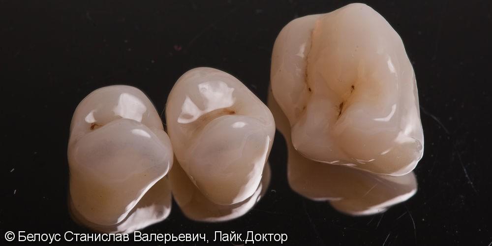 Лечение каналов и установка 3х CAD/CAM коронок на жевательные зубы за два посещения - фото №5