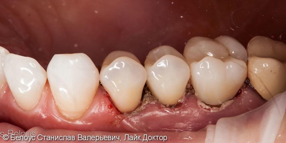 Лечение каналов и установка 3х CAD/CAM коронок на жевательные зубы за два посещения - фото №7