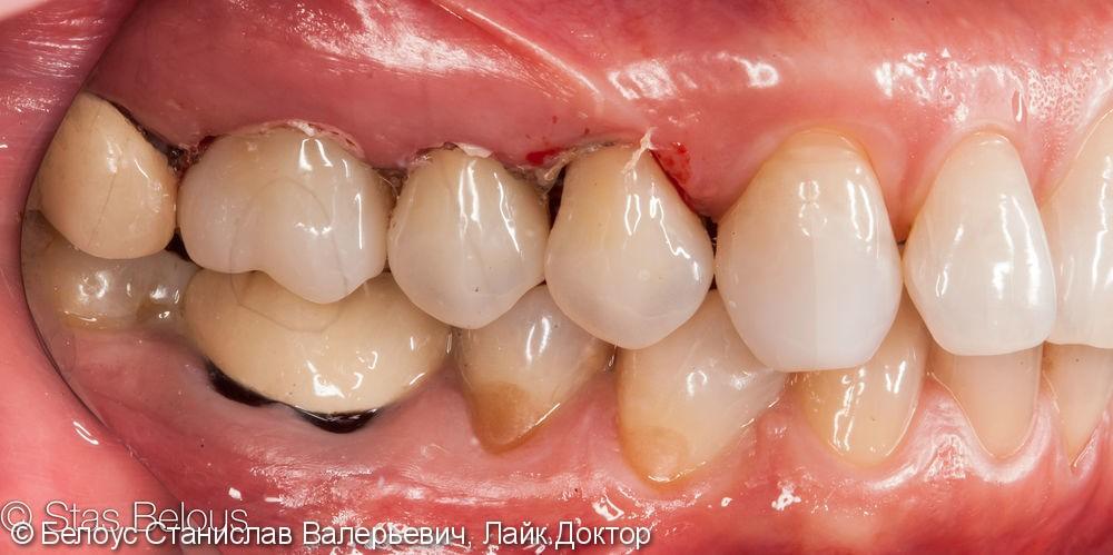 Лечение каналов и установка 3х CAD/CAM коронок на жевательные зубы за два посещения - фото №8