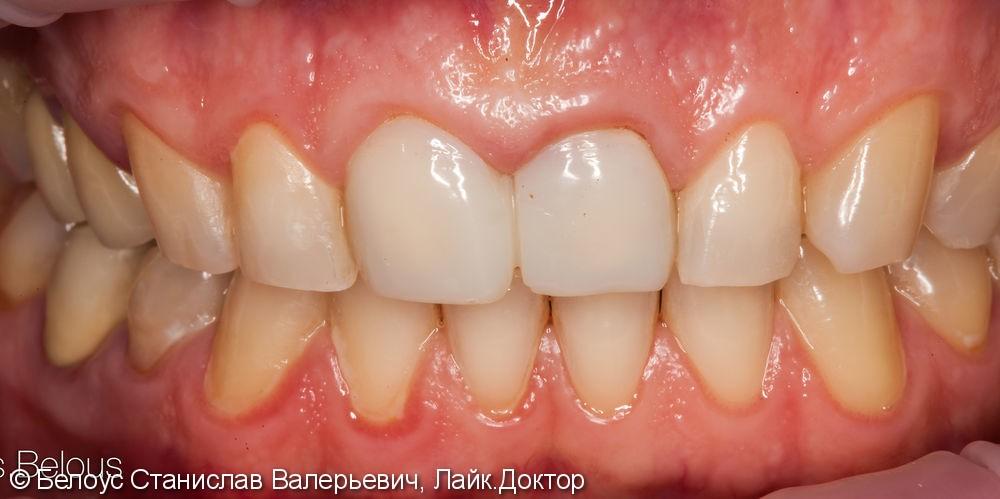 Две коронки Cerec на передние зубы за 1 день, до и после - фото №1