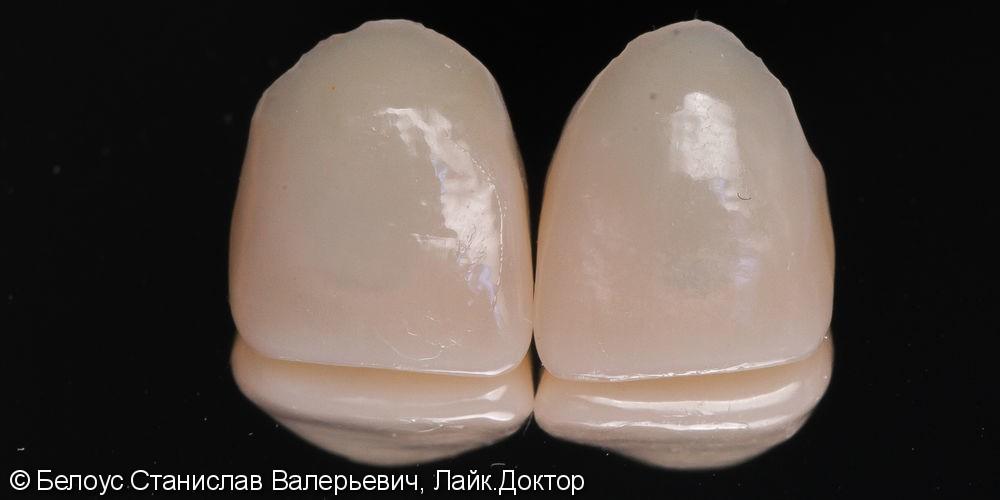 Две коронки Cerec на передние зубы за 1 день, до и после - фото №4