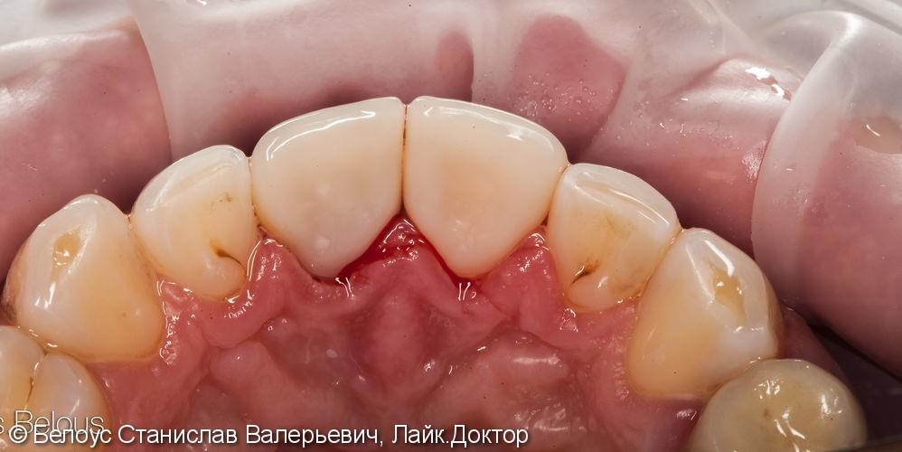 Две коронки Cerec на передние зубы за 1 день, до и после - фото №5