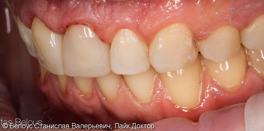 Две коронки Cerec на передние зубы за 1 день, до и после - фото №7