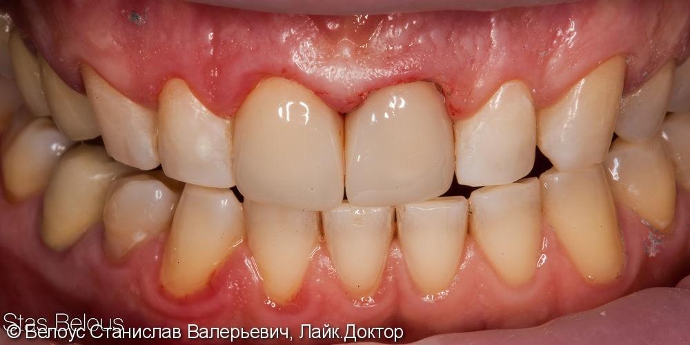 Две коронки Cerec на передние зубы за 1 день, до и после - фото №8