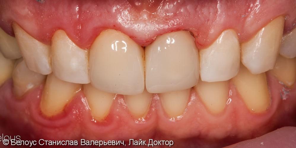 Две коронки Cerec на передние зубы за 1 день, до и после - фото №9