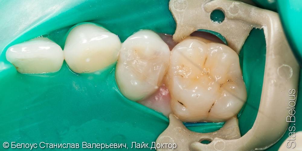 Установка CAD/CAM вкладки, удаление нерва, лечение кариеса - фото №1