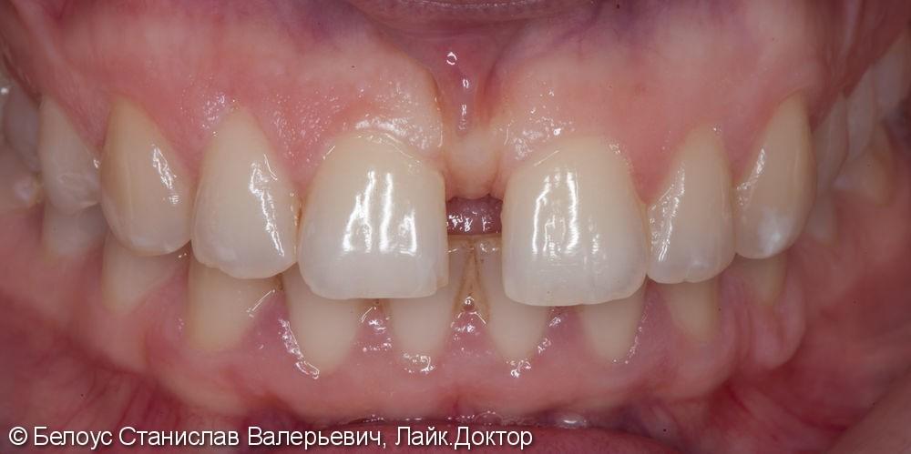 Виниры на 2 центральных зуба, до и результат после - фото №1
