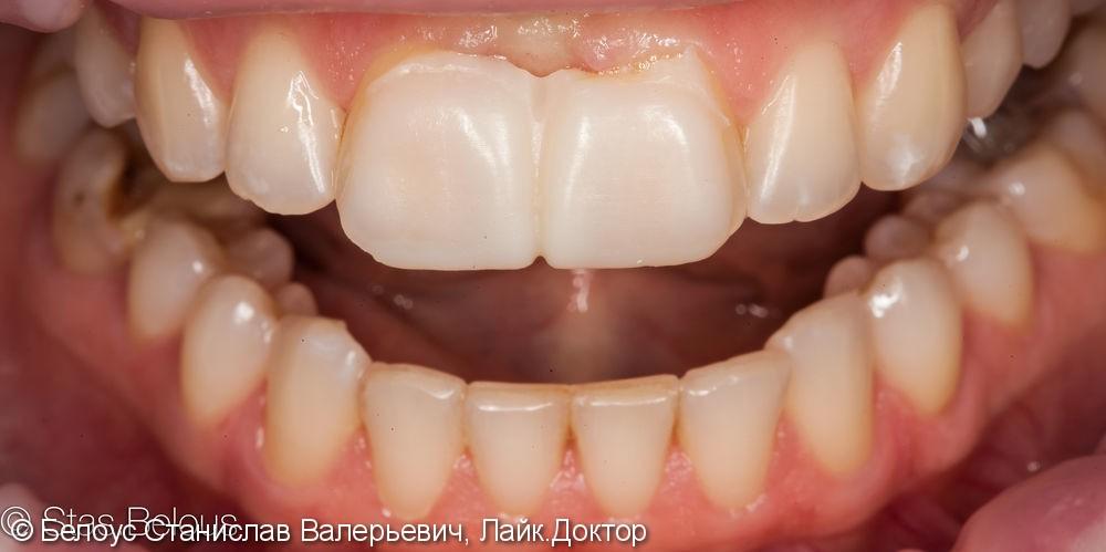 Виниры на 2 центральных зуба, до и результат после - фото №2
