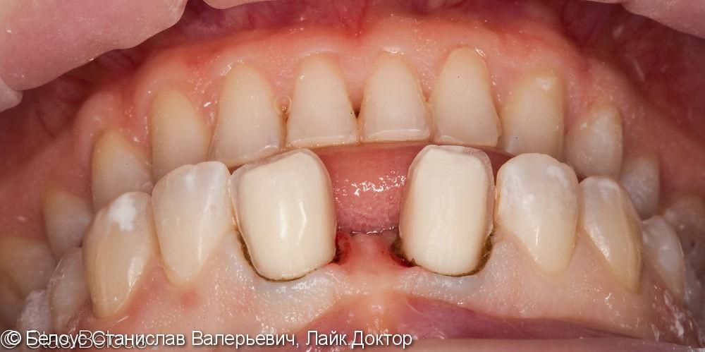 Виниры на 2 центральных зуба, до и результат после - фото №3