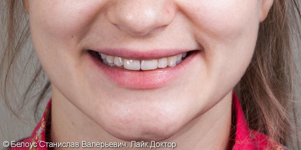 Виниры на 2 центральных зуба, до и результат после - фото №5