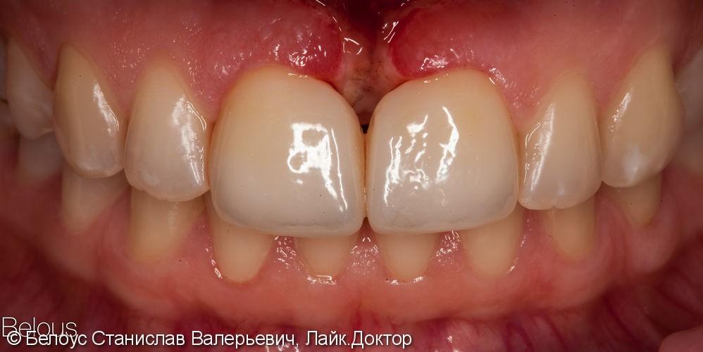 Виниры на 2 центральных зуба, до и результат после - фото №6