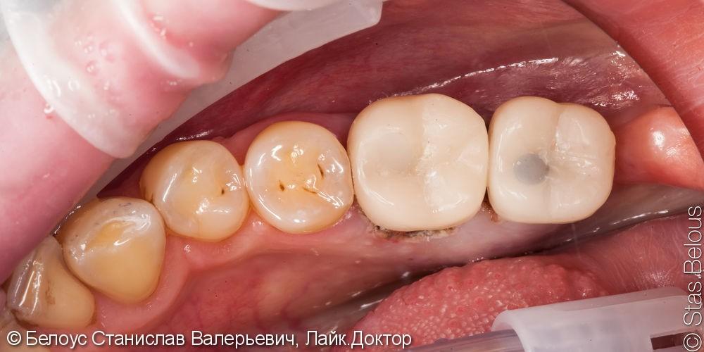 Протезирование на имплантах за один визит по технологии Церек. - фото №6