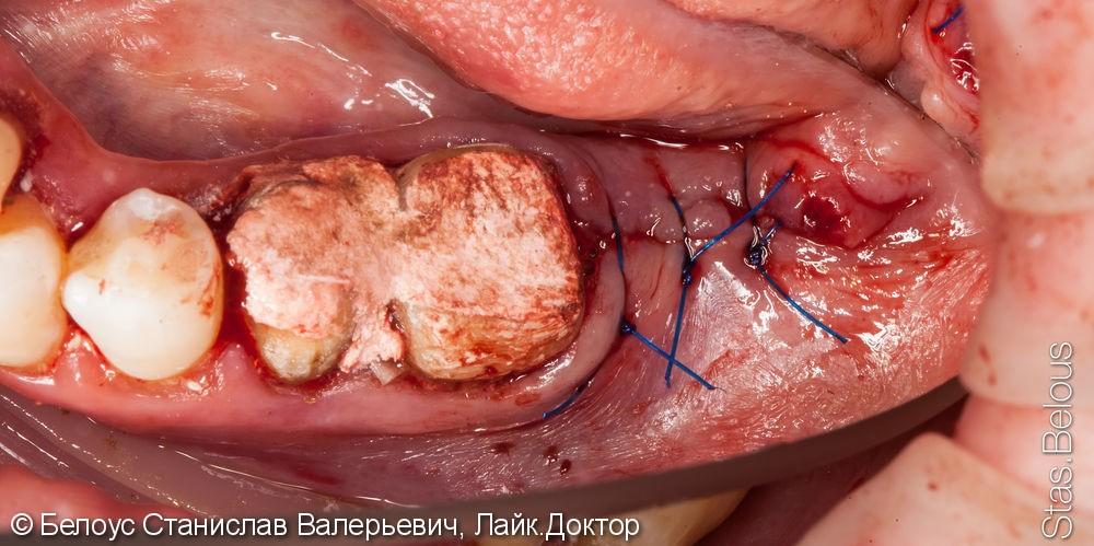 Удаление зуба, установка коронок, имплантация 47 в будущем - фото №3