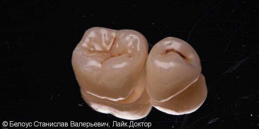 Удаление зуба, установка коронок, имплантация 47 в будущем - фото №5