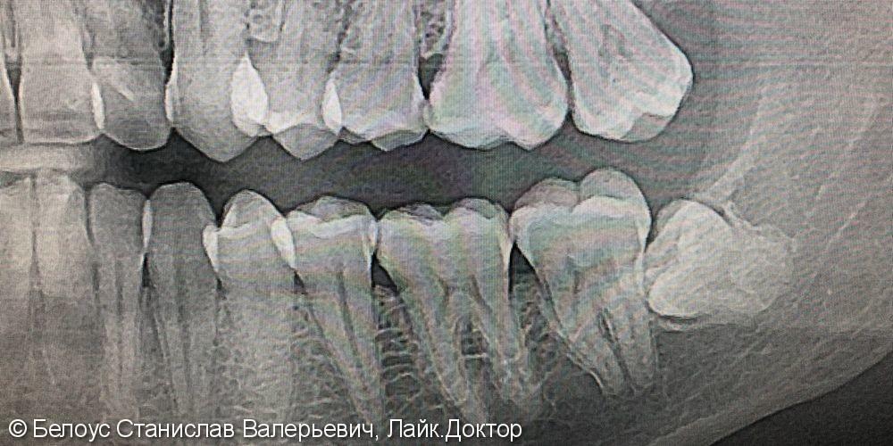 Удаление ретинированного зуба мудрости, до и после - фото №1