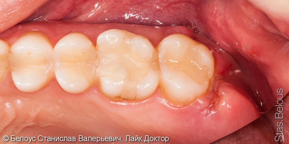 Результат удаления зуба мудрости, до и после - фото №2