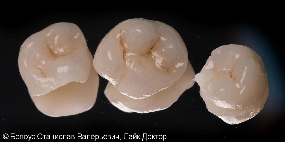 Установка Церек коронок на зубы за 4 часа - фото №5