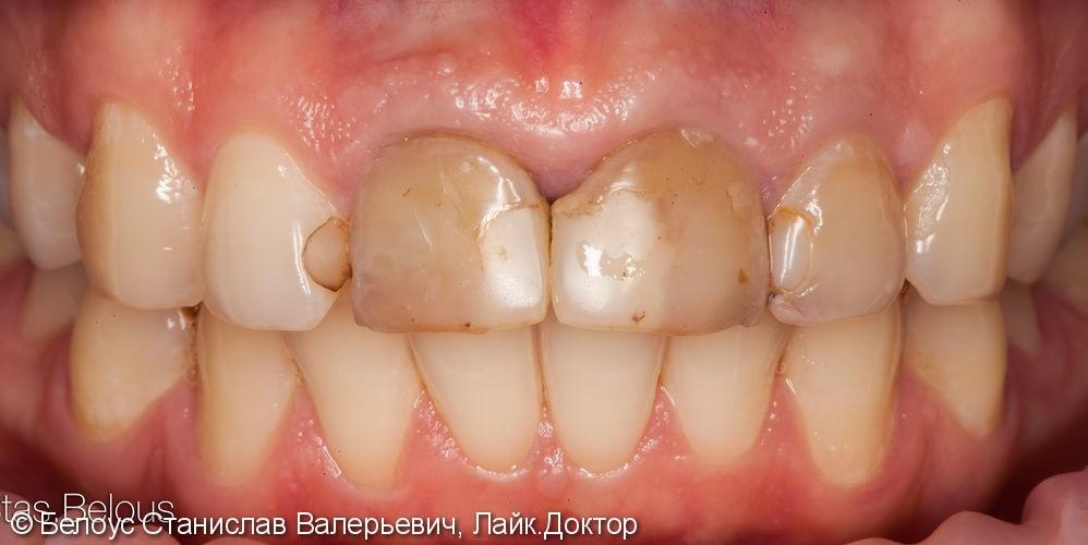 Коронки на передние зубы - фото №1