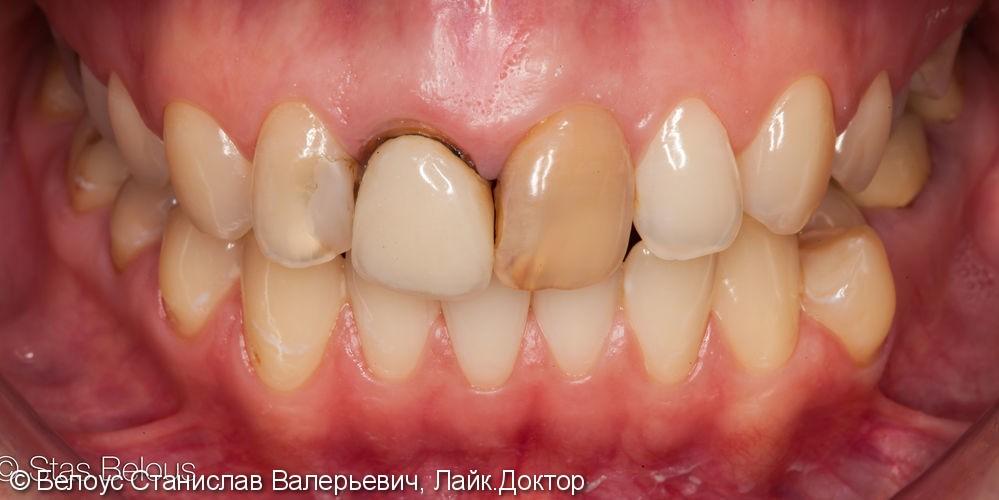 Изготовление цельнокерамических Cad/cam коронок на передние зубы - фото №1