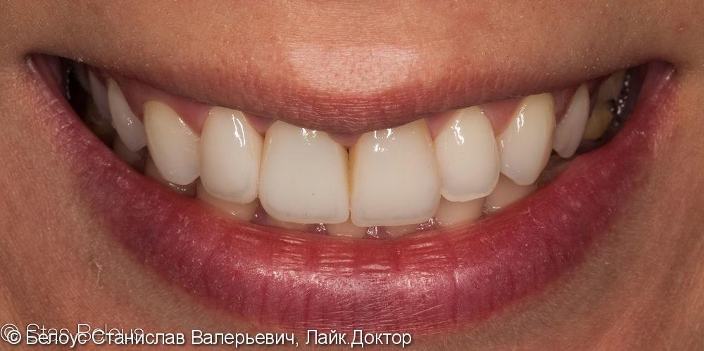 Изготовление цельнокерамических Cad/cam коронок на передние зубы - фото №5
