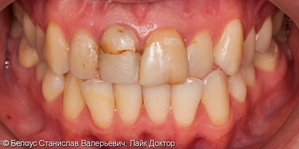 Установка коронок на передние зубы верхние резцы Cad/cam CEREC - фото №1