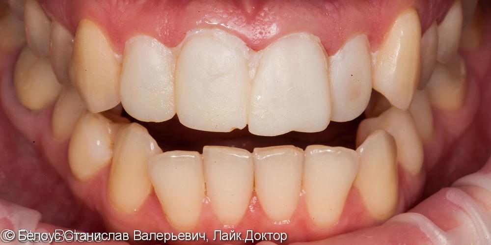 Установка коронок на передние зубы верхние резцы Cad/cam CEREC - фото №4