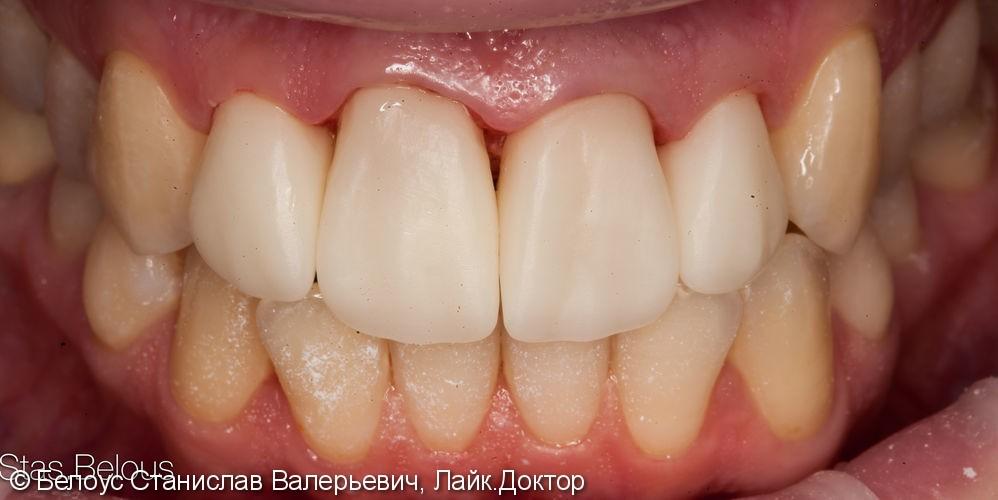 Установка коронок на передние зубы верхние резцы Cad/cam CEREC - фото №5