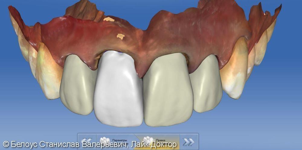 Установка коронок на передние зубы верхние резцы Cad/cam CEREC - фото №6