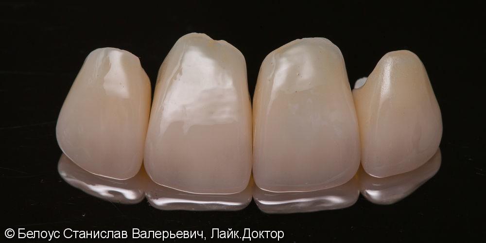 Установка коронок на передние зубы верхние резцы Cad/cam CEREC - фото №7