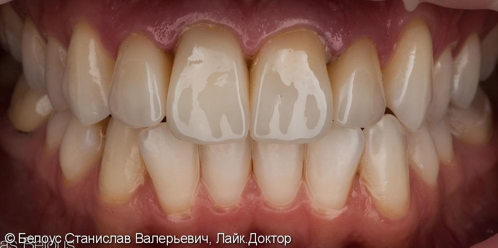 Установка коронок на передние зубы верхние резцы Cad/cam CEREC - фото №8