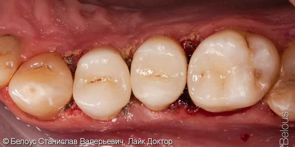 Лечение кариеса Керамическими вкладками CEREC - фото №7
