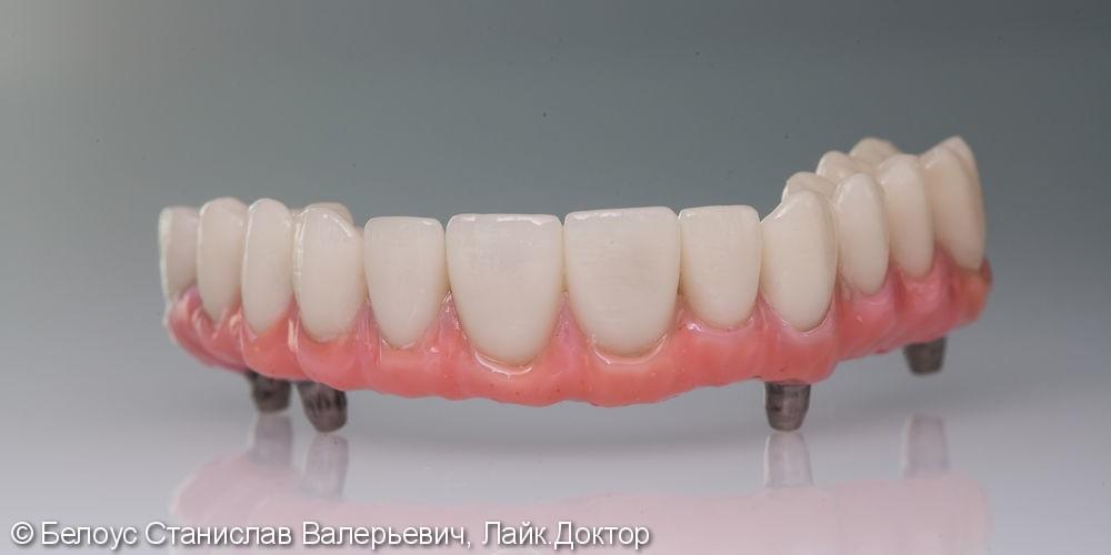 Зубной протез с опорой на 4 импланта Straumann (Германия) - фото №1
