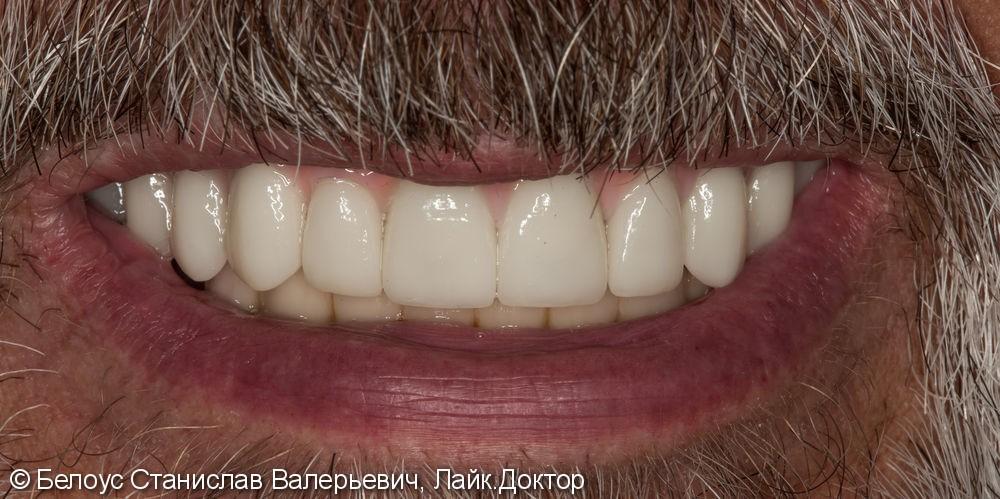 Зубной протез с опорой на 4 импланта Straumann (Германия) - фото №5