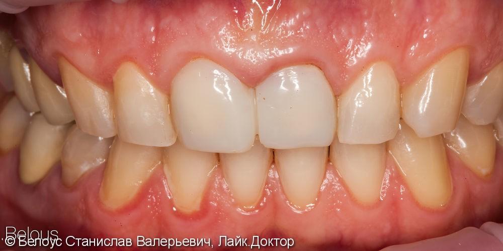 Передние зубы за 1 визит CEREC - фото №1
