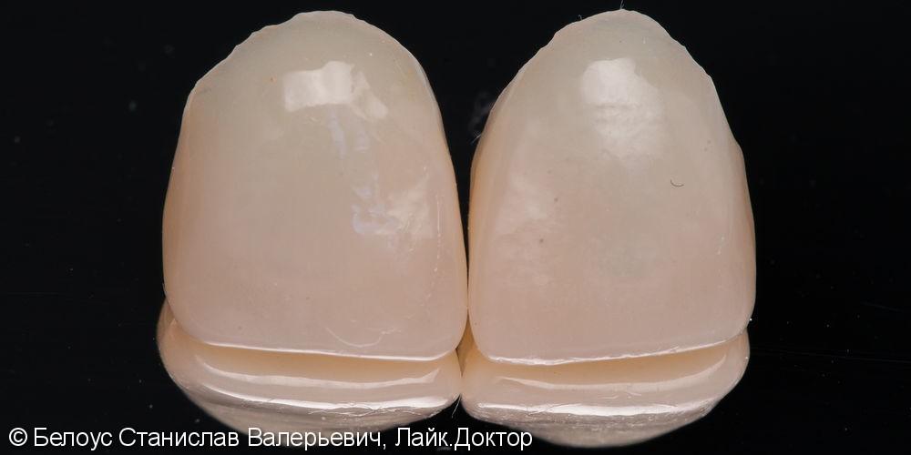 Передние зубы за 1 визит CEREC - фото №2