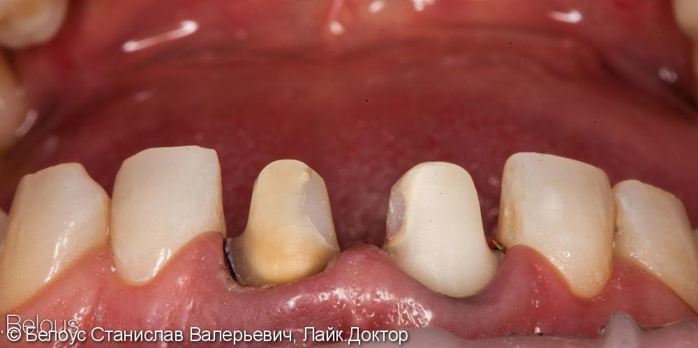 Передние зубы за 1 визит CEREC - фото №3