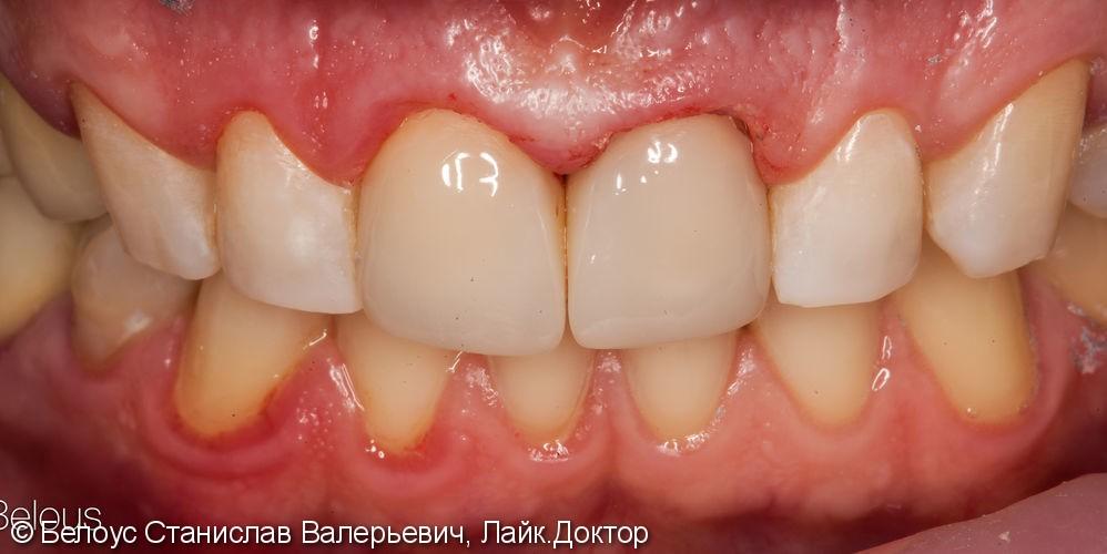 Передние зубы за 1 визит CEREC - фото №4