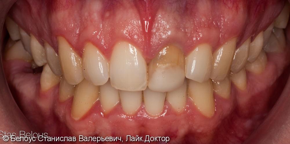 Коронка на передний зуб из стеклокерамики. - фото №1