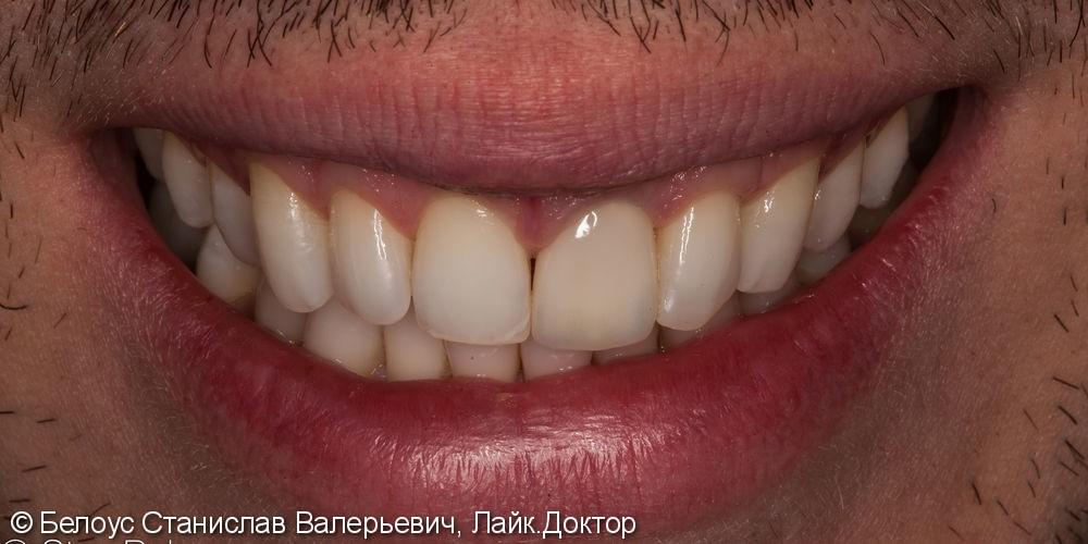 Коронка на передний зуб из стеклокерамики. - фото №3