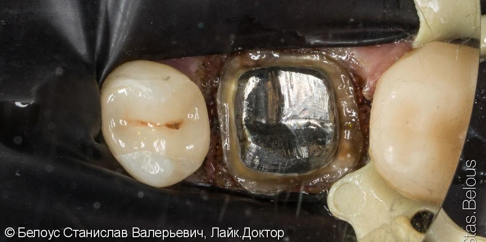 Коронка на 6 зуб - фото №4