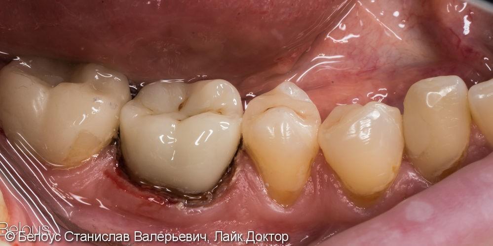 Коронка на 6 зуб - фото №5