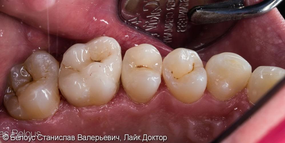 Лечение Кариеса по 3D протоколу CEREC - фото №6