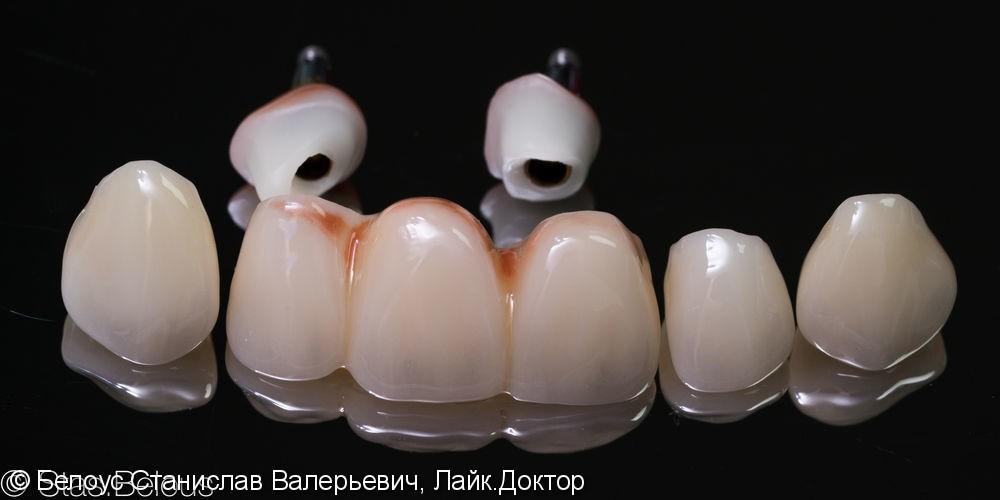 Протезирование на имплантах по CAD/CAM - фото №3
