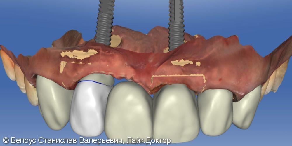 Протезирование на имплантах по CAD/CAM - фото №5