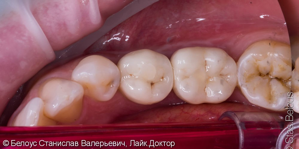 Коронки на импланты CEREC - фото №4