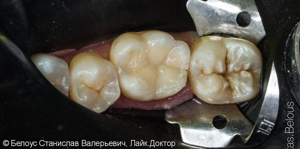 Лечение глубокого кариеса - фото №3