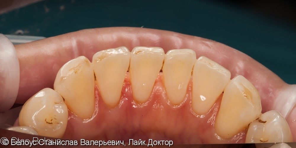 Гигиена полости рта - фото №2