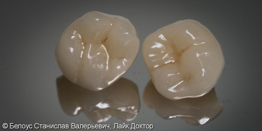 Лечение каналов и установка коронки на 16 зуб - фото №3